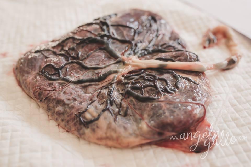 Placenta Sagrada